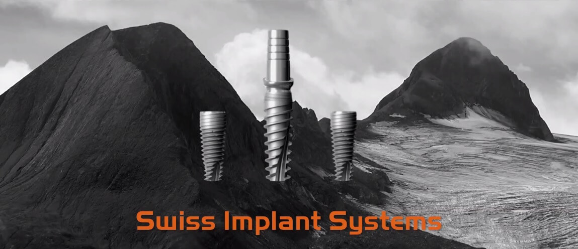 Zahnimplantat - Swiss Implant Systems